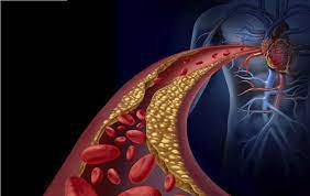 4 Semne silentioase ca aveti arterele infundate si cum sa le desfundati!